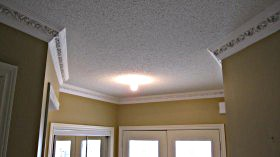 fancy dental crown molding ideas